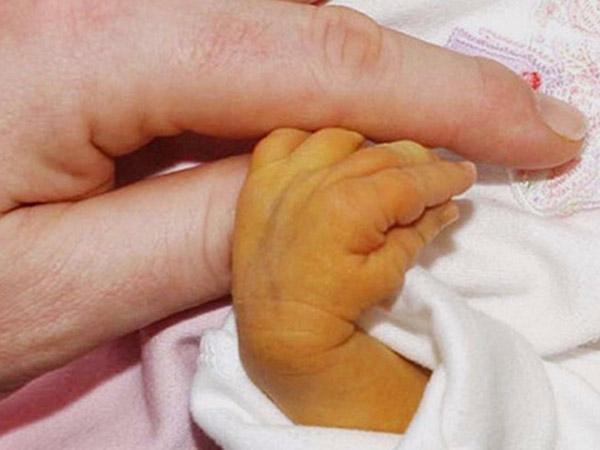 Giải đáp: Vàng da ở trẻ sơ sinh bao lâu thì hết?